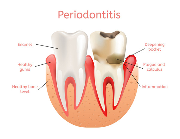 Diagram of a healthy tooth versus a tooth with periodontitis at Dental Consequences of Periodontal Disease in Tinton Falls, NJ